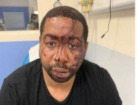 Violences policières systémiques : le préfet solidaire des brutes racistes et menteuses sous serment